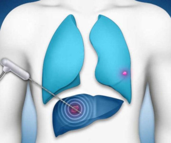 Termoablazione: il calore per combattere i tumori. IL VIDEO